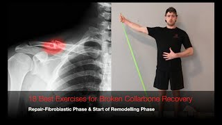 18 Best Exercises for Broken Collarbone Recovery