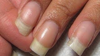 How To Fix A Broken Corner | DIY Nail RepairTutorial