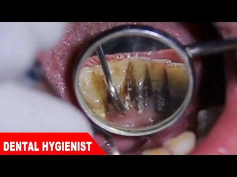 Extreme Dental Cleaning 2 - Black teeth turned white !!