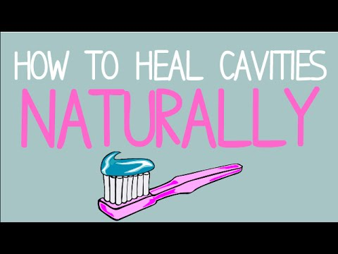 Video How to Heal Cavities NATURALLY