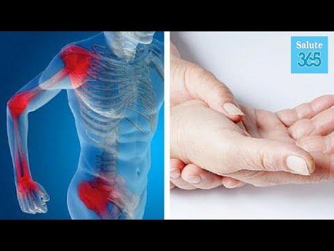 I raggi X del ginocchio in gonartrosi