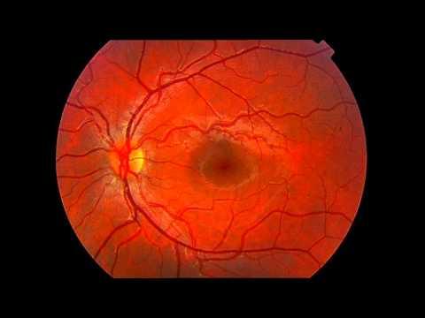 El retinografo (angiógrafo) - Centro de Oftalmología Bonafonte