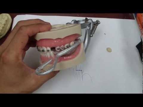 Odbudowa korony zęba za pomocą amalgamatu - wskazówki