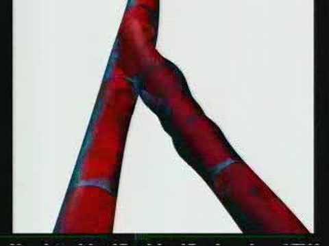 Das Krankenbild der Thrombosen