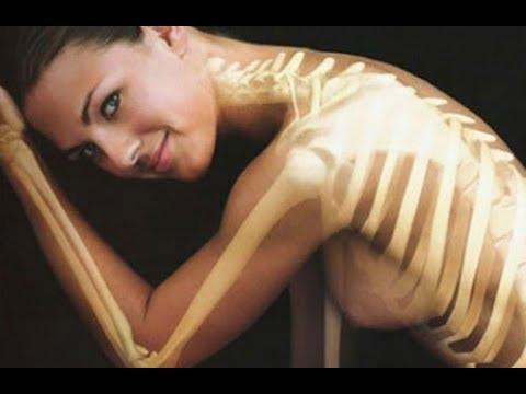 Joggen in Osteochondrose