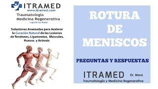 LA ROTURA DE LOS MENISCOS - ITRAMED - Instituto de Traumatología y Medicina Regenerativa Avanzada