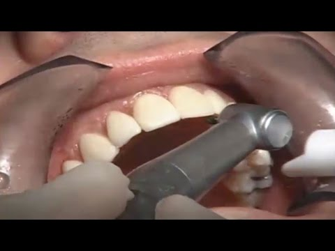 Comparative Study of No prep, Laser Removal, and Minimal prep Veneers on the same patient