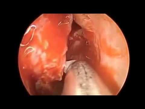 Isang dugo pagsubok para sa mga parasito helix