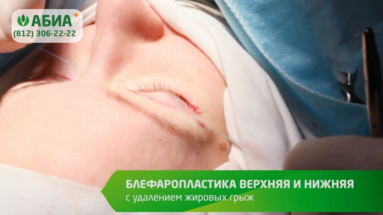 Блефаропластика верхняя и нижняя