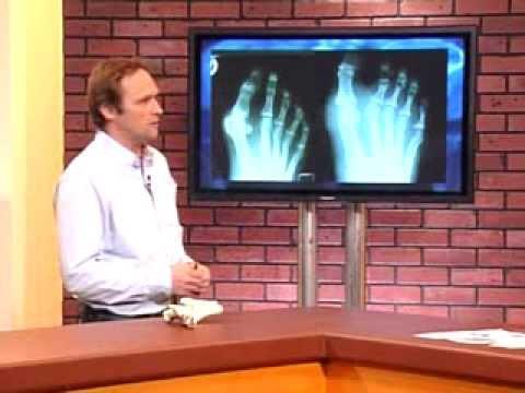 Ob die Behandlung von Chiropraktiker Osteochondrose