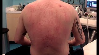 Back Acne Treatment - Back Acne: Treating Inflammation And Scars From Cystic Acne