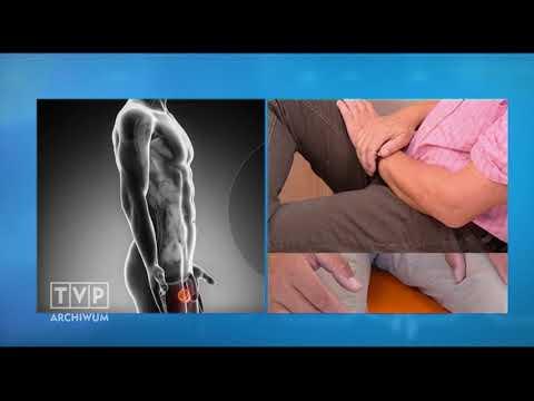 Leki stosowane w leczeniu zastoinowej gruczołu krokowego