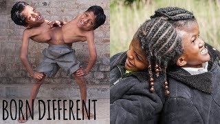 Conjoined Twins Special | BORN DIFFERENT