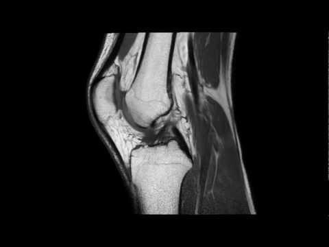 Ízületi fájdalom mikoplazmával