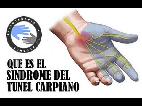 ¿Qué es la artrosis de las articulaciones intervertebrales