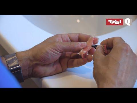 Wie repariere ich eine Zahnprothese?
