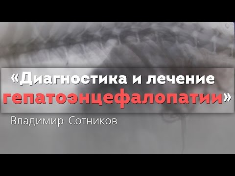 Диагностика и лечение гепатоэнцефалопатии