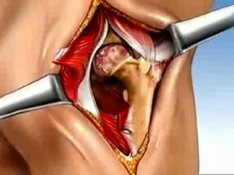 Fáj a nyaki ízületek