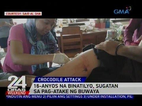 16-anyos na binatilyo, sugatan sa pag-atake ng buwaya