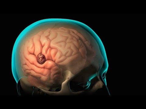 Beyin Damar Tıkanıklığı Tedavisi