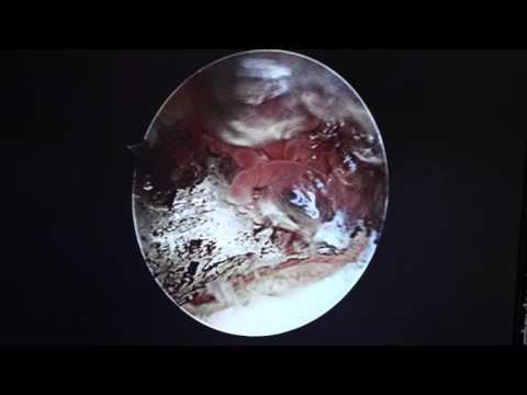 Mi a deformáló artrosis a csípőízület