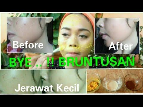 Video Cara Mudah MenghilangKan BRUNTUSAN,JERAWAT Yang Membandel