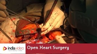 Open Heart Surgery, Lisie Hospital