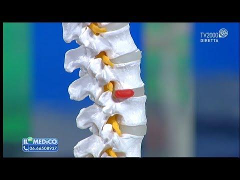 Il trattamento della protrusione della colonna vertebrale e ernia discale