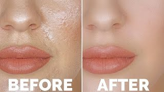 How To STOP Oily Skin!! | The Number 1 Oily Skin Trick You NEED TO KNOW!!