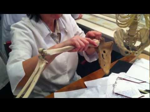 Деформирующий остеоартроз коленных суставов 1-2 степени