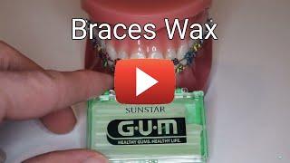 Braces Wax