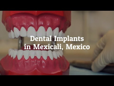 Important Details on Dental Implants in Mexicali, Mexico