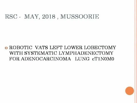 Robotic VATS Left Lower Lobectomy + Systematic Lymphadenectomy