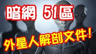 體驗《暗網》51區解剖外星人文件  Area 51 Anatomy Alien File ~ deep web Dark net