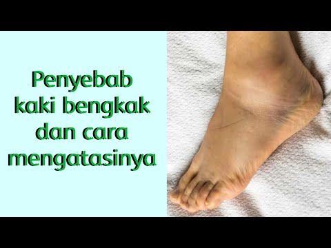 Ware és prostatitis