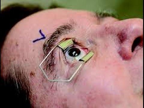 Сколько стоит лазерная коррекция зрения украине