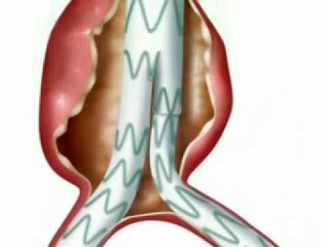 Hipertenzija rizik od 4 kako liječiti