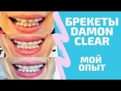 БРЕКЕТЫ: процесс во всех подробностях. DAMON CLEAR. Путь с идеальной улыбке.