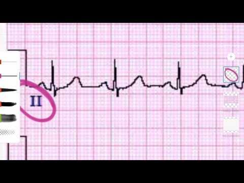 Compresse per la stabilizzazione della pressione arteriosa