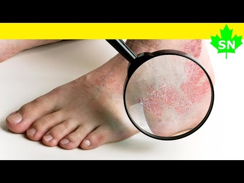 Le moyen effectif national du traitement contre le psoriasis