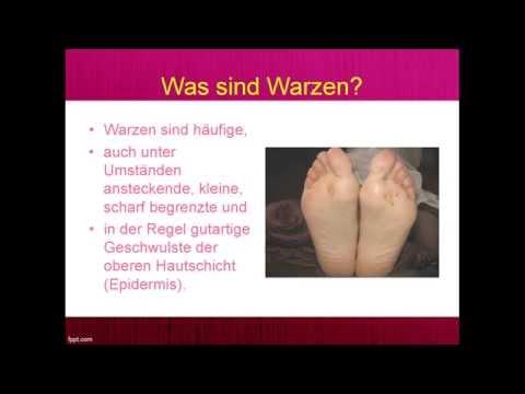 Wie den Nagel auf dem Daumen des Beines vom Stoß zu heilen