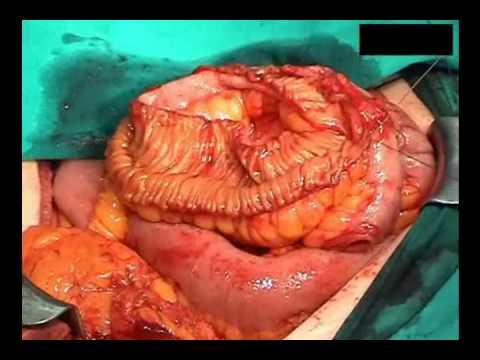 Preporaty ārstēšanā prostatīta