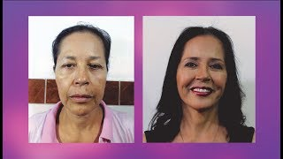 LIFTING FACIAL 👸 REJUVENECIMIENTO FACIAL ANTES Y DESPUES 💕CIRUGÍA PLASTICA NEVADO 💜 Dr. Percy Nevado