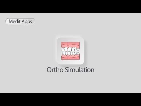 Medit Ortho Simulation: Improving patient understanding