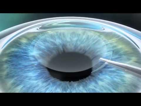 Повышенное глазное давление 26