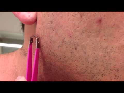 how to draw out pus from ingrown hair