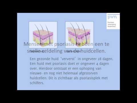 Le nano-gel du psoriasis acheter à sankt-peterbourge