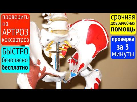 Как проверить на АРТРОЗ тазобедренный сустав в домашних условиях?