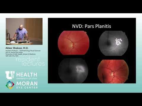 Hogyan javíthatja látását