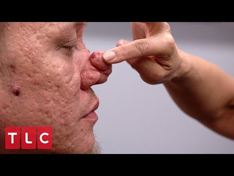 This Man's Bumps on His Nose are Becoming a Burden | Dr. Pimple Popper